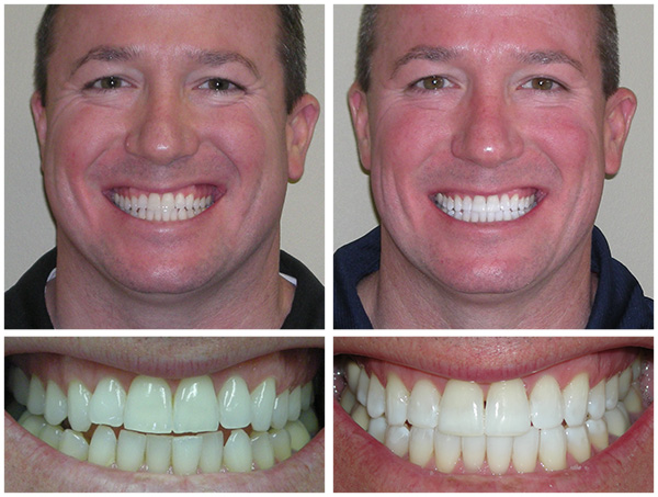 Before And After Dentist Manasquan Nj Valerie Barba Dds