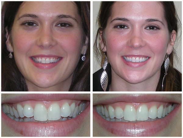 Invisalign 174 Before Amp After Dentist Manasquan Nj